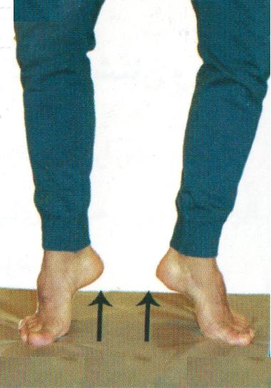 زخم پای دیابت درمان